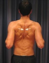 Stroke Wise: Improving shoulder pain